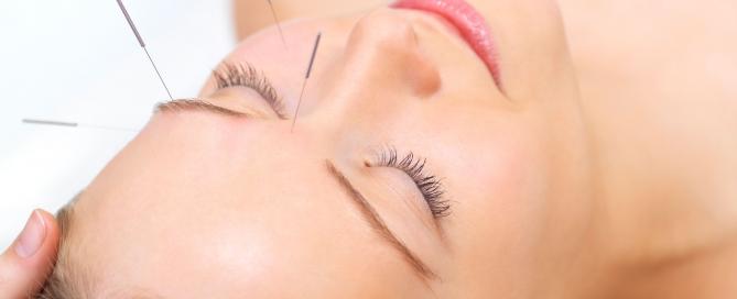 face-acupuncture